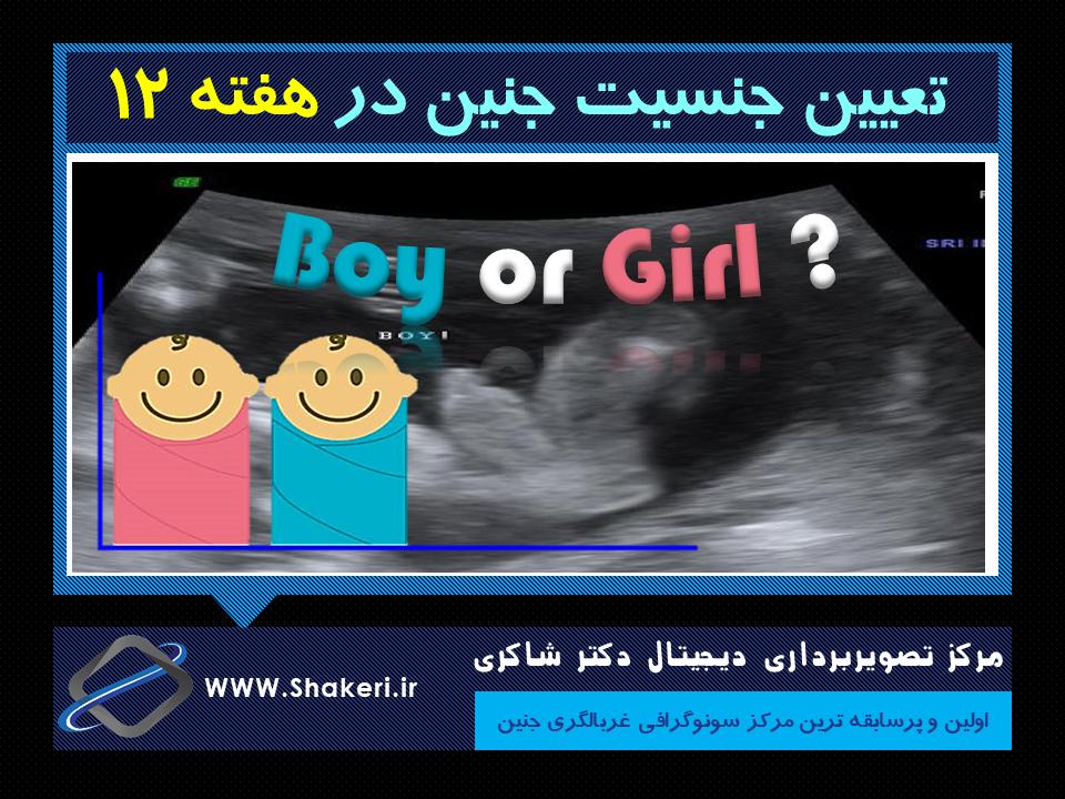 تعیین جنسیت جنین در هفته 12