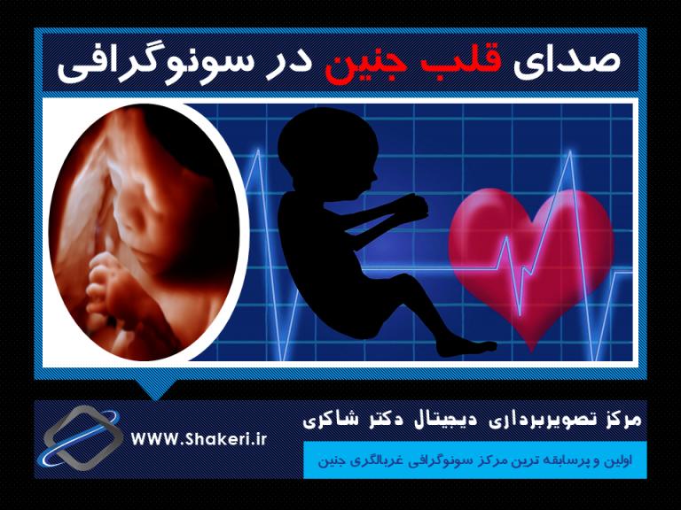 صدای قلب جنین در سونوگرافی