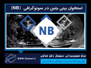 استخوان بینی جنین در سونوگرافی