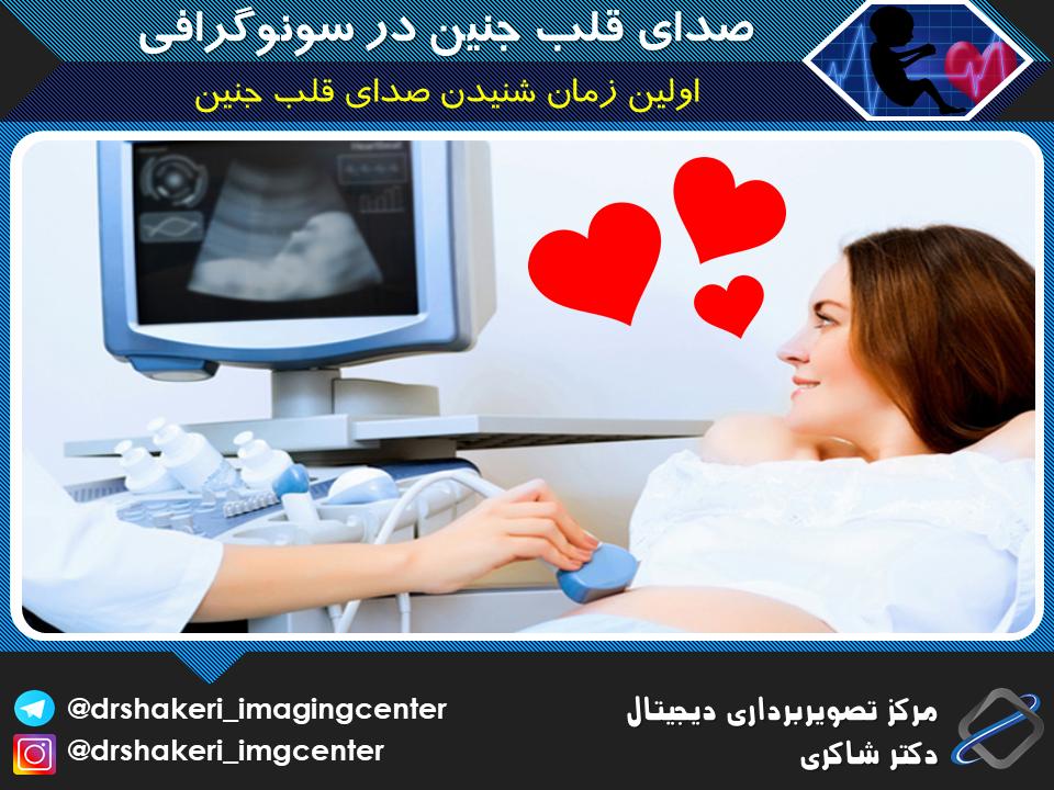 اولین زمان شنیدن صدای قلب جنین