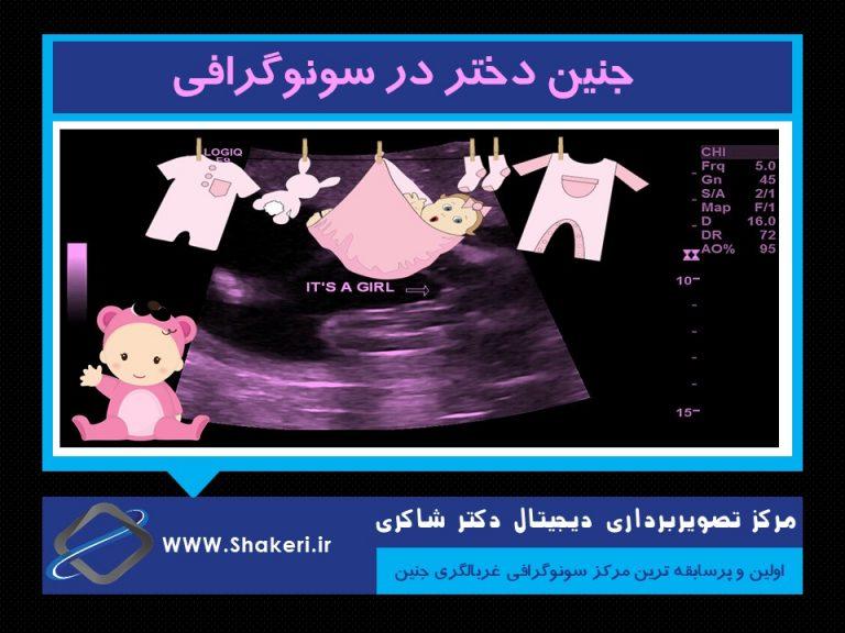 جنین دختر در سونوگرافی