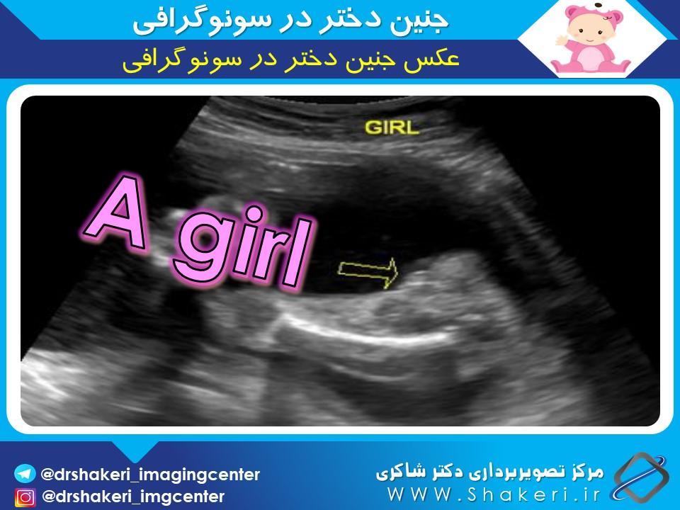 عکس جنین دختر در <a href=