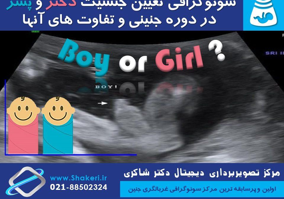 سونوگرافی تعیین جنسیت