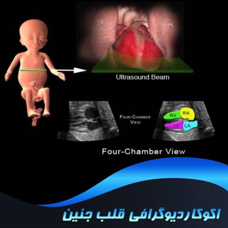 اکوکاردیوگرافی قلب جنین