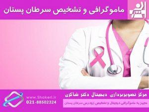 ماموگرافی و تشخیص سرطان پستان