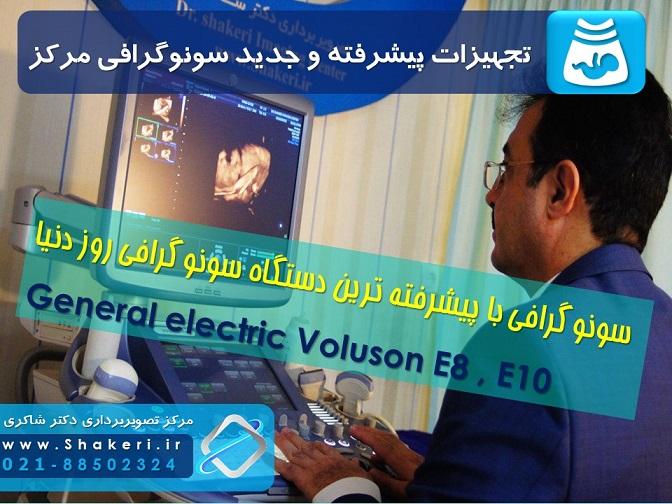 پیشرفته ترین سونوگرافی تهران