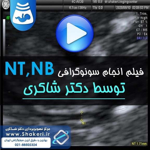 فیلم سونوگرافی nt